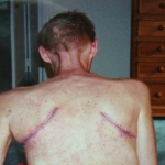 Jay's scars (Used with his permission)